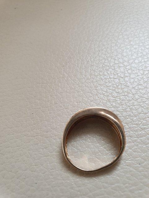 Через 2 недели кольцо деформировалось!